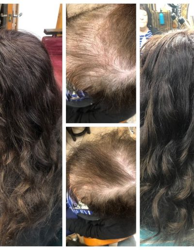 Hair Restore Enhancement System Before and After Photo
