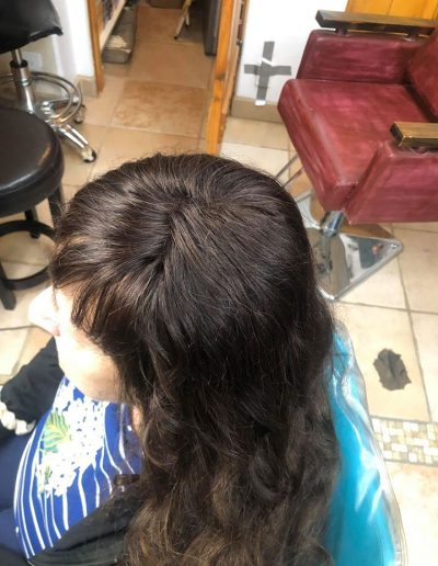 Hair Restore Enhancement System after photo